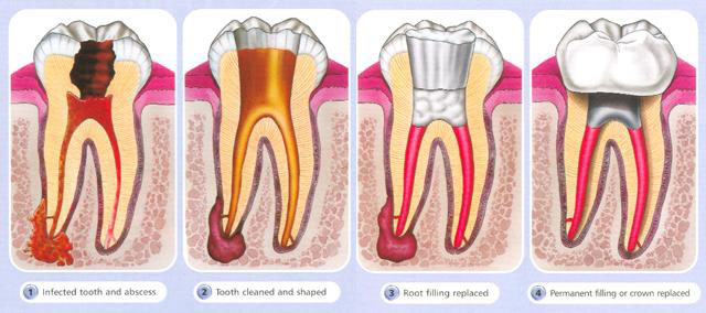 needing a root canal is a serious matter it can often mean you have infection that could enter your bloodstream and cause serious issues if not taken care